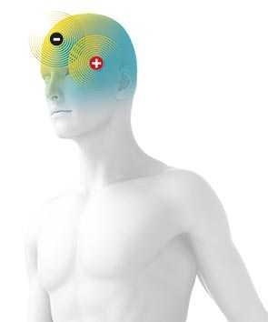 Schematische Darstellung eines Mannes mit Plus- und Minuselektrode am Kopf