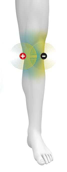 Schematische Darstellung eines Mannes mit Plus- und Minuselektrode am Knie