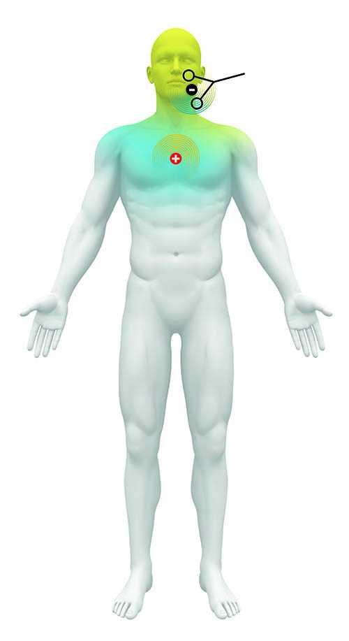 Schematische Darstellung eines stehenden Mannes, der Elektroden im Gesicht und auf der Brust hat