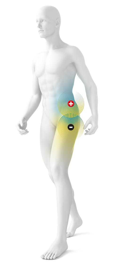 Schematische Darstellung eines Mannes mit Plus- und Minuselektrode auf der Hüfte